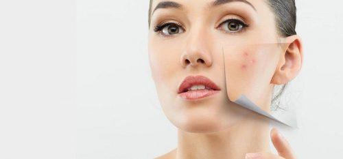 Những lưu ý khi chăm sóc da khô bị mụn