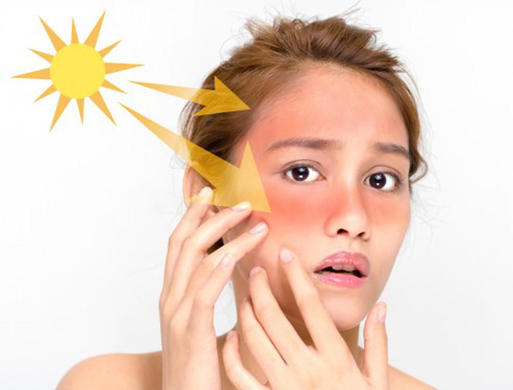 Tầm quan trọng của kem chống nắng với làn da